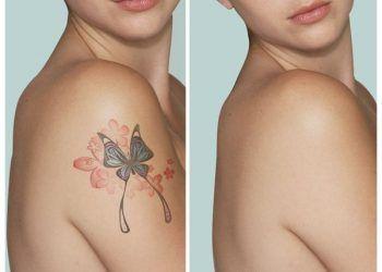 borrar tatuajes costa rica