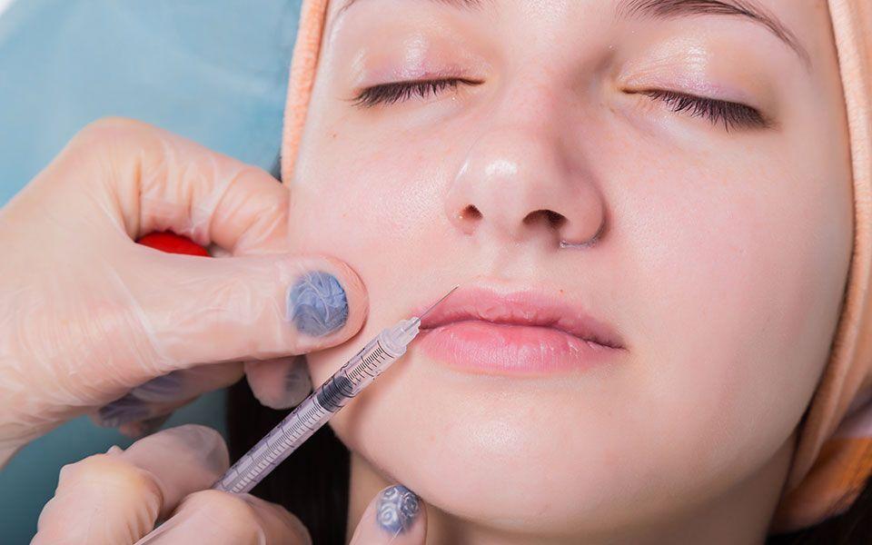 bioplastia - Line fillers or bioplasty