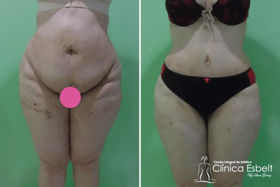 abdominoplastia lipolaser3 - Lipoláser (slim láser)