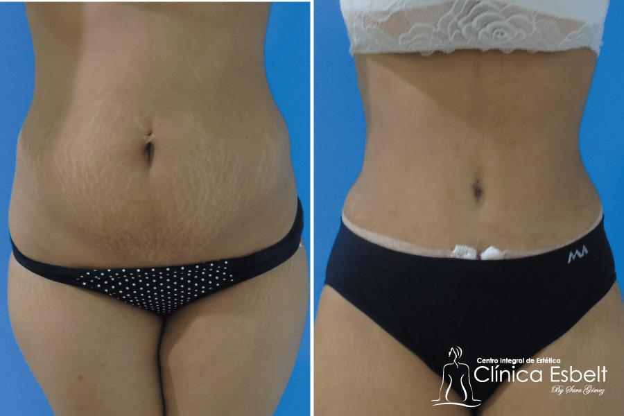 abdominoplastia lipolaser4 - Lipoláser (slim láser)