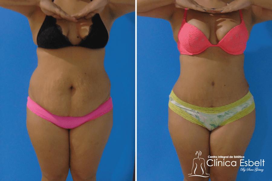 abdominoplastia-lipolaser5