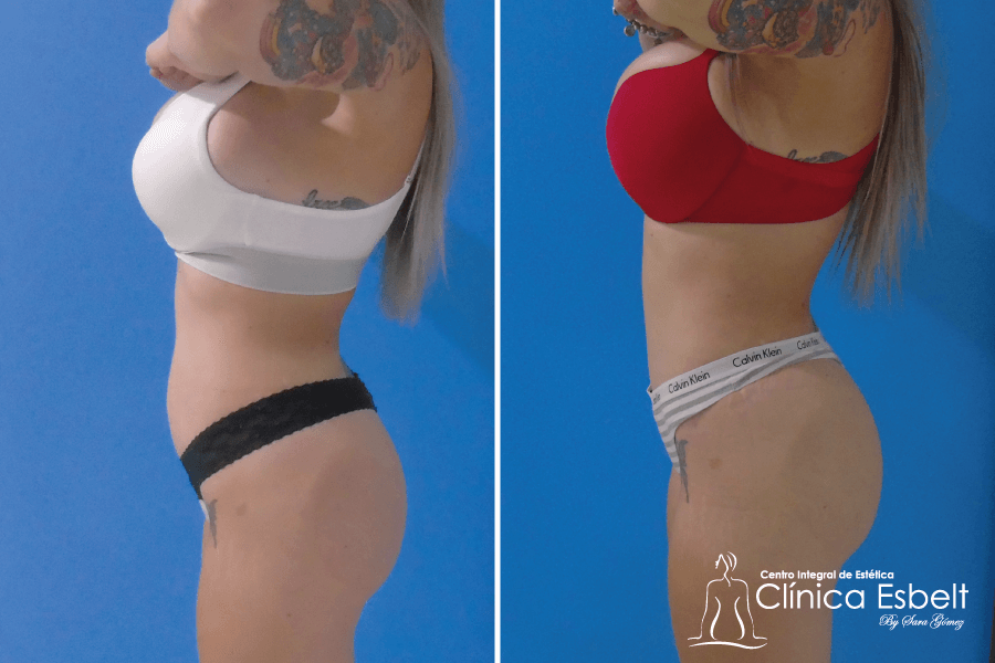 abdominoplastia-lipolaser8