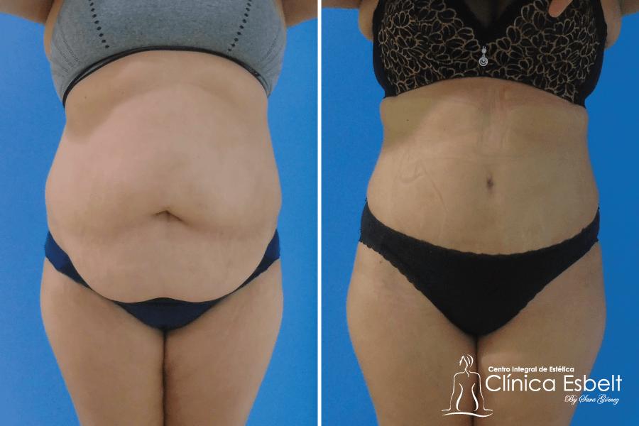 abdominoplastia-lipolaser9