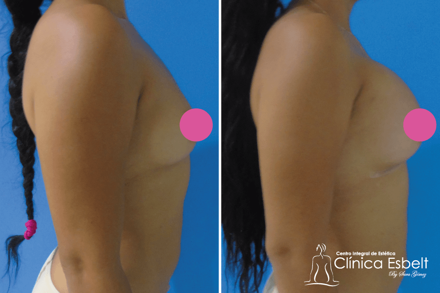 Implantes de senos