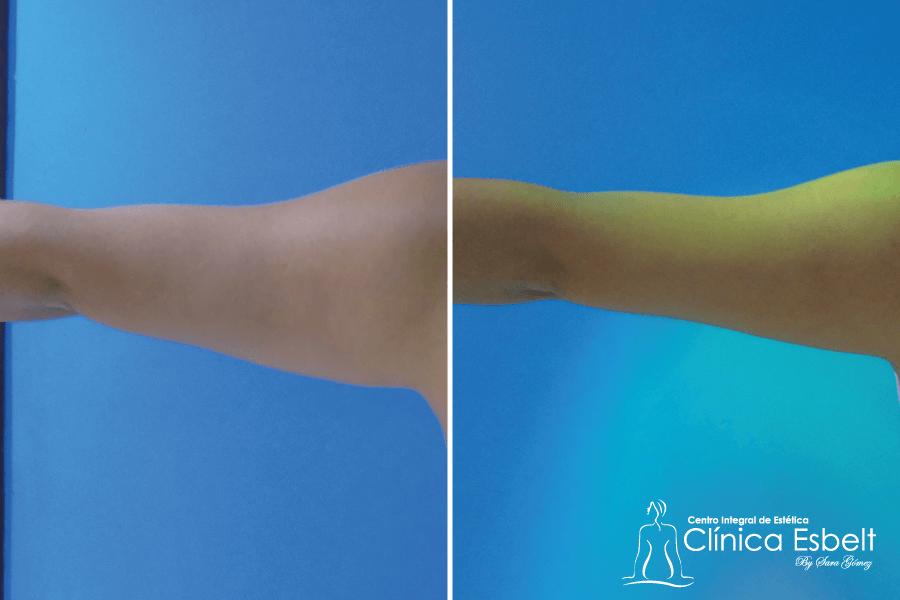 lipoescultura brazos - Lipoláser (slim láser)