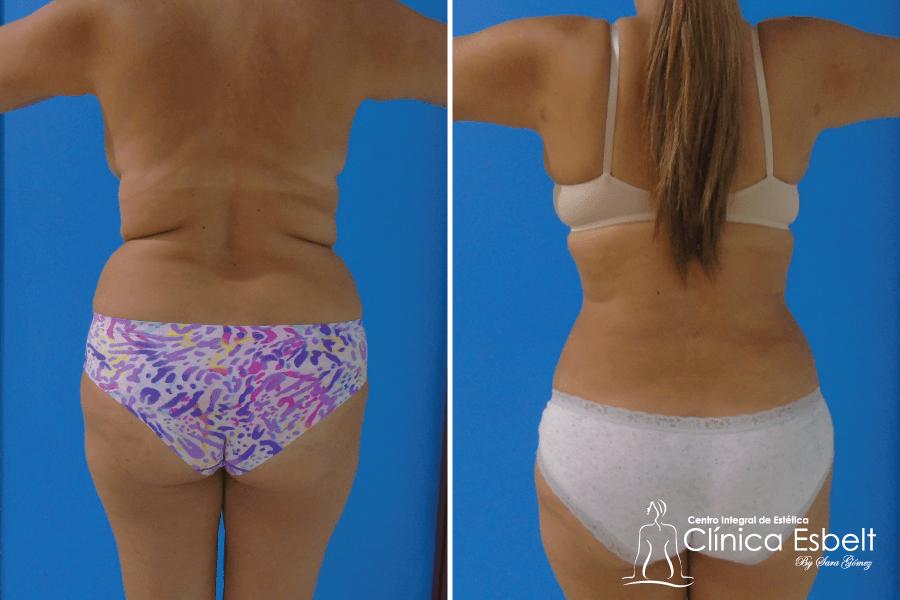 Lipolaser en espalda