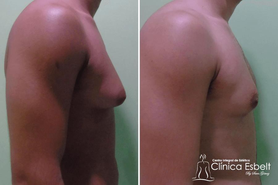 Lipolaser Ginecomastia
