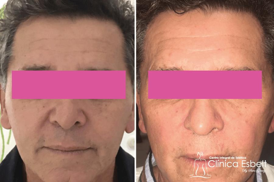 tensadofacillaser - Tensados Corporales y Faciales con Láser de Fotona