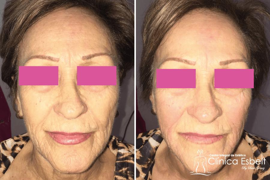 tensadolaserfacial1 - Tensados Corporales y Faciales con Láser de Fotona