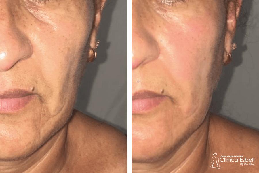 tensadoojera1 - Tensados Corporales y Faciales con Láser de Fotona