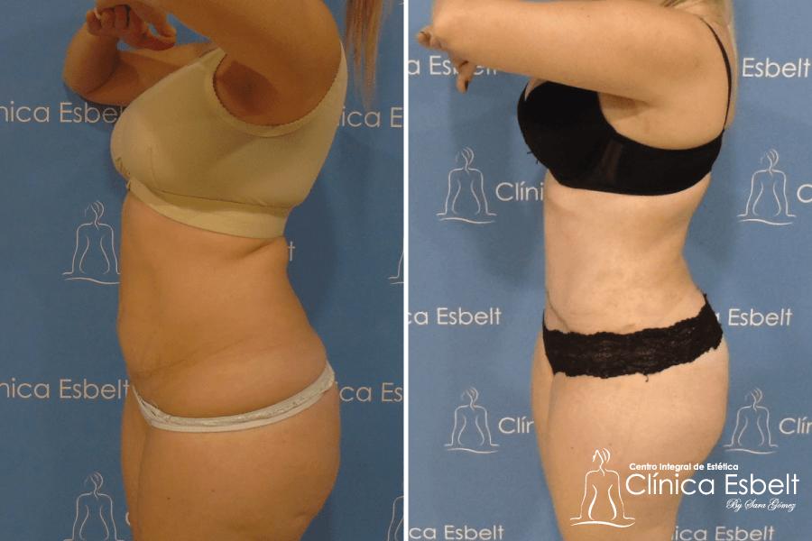 Abdominoplastía Antes y Después