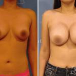 aumentodesenos1 150x150 - Implante de Senos