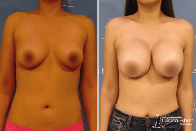 aumentodesenos1 768x512 - Implante de Senos