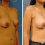 aumentodesenos2 150x150 - Implante de Senos