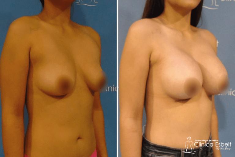 aumentodesenos2 768x512 - Implante de Senos