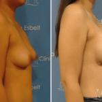 aumentodesenos3 150x150 - Implante de Senos