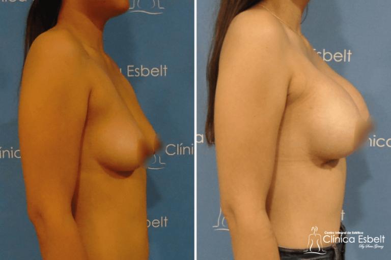 aumentodesenos3 768x512 - Implante de Senos