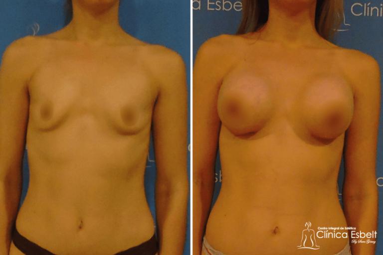 implantesdeseno1 768x512 - Implante de Senos