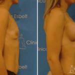 implantesdeseno2 150x150 - Implante de Senos