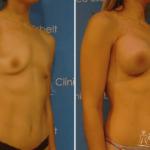 implantesdesenos3 150x150 - Implante de Senos