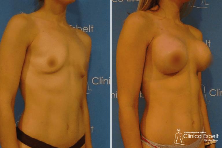 implantesdesenos3 768x512 - Implante de Senos