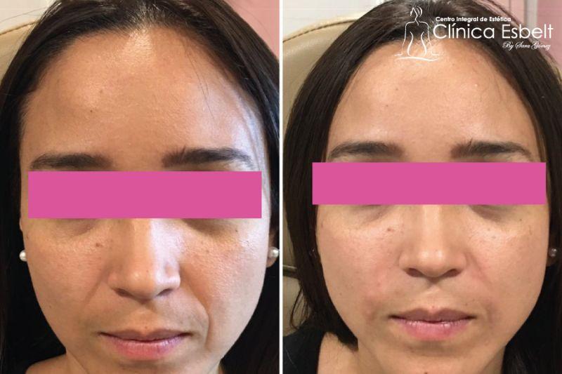 rellenoAHsurconasal 1 - Rellenos faciales y corporales para rejuvenecimiento